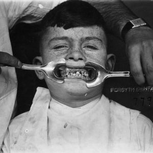 Boy - age 14 yrs. Irish-American, Forsyth Dental Infirmary, Boston, Mass