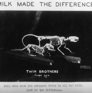 Milk made the difference. Twin rats were fed adequate diets in all but milk. Look at the difference